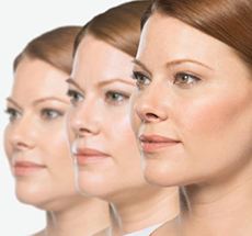 Kybella Injection Treatment Raleigh NC