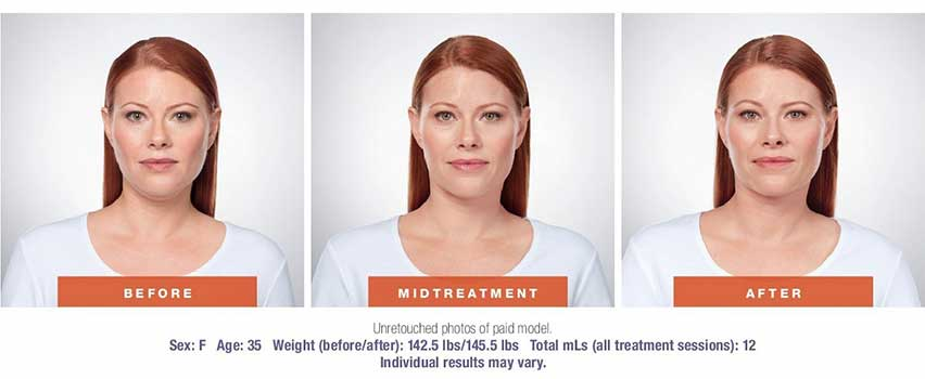 Kybella Injections Raleigh