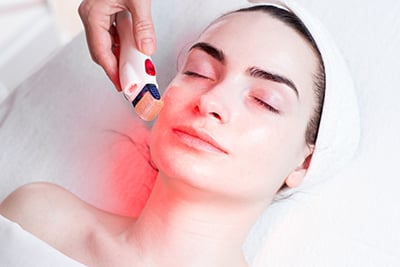 Microneedling with RF in Raleigh NC