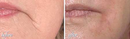 Dermal Fillers Results
