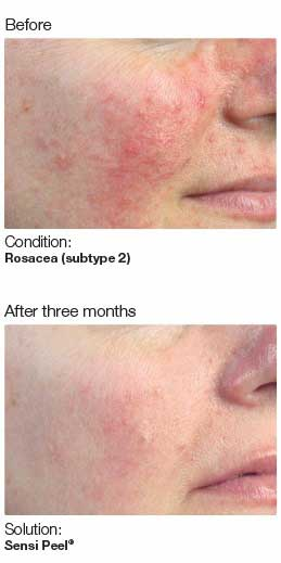 Medical Skin Peel Treatment Doctor Raleigh