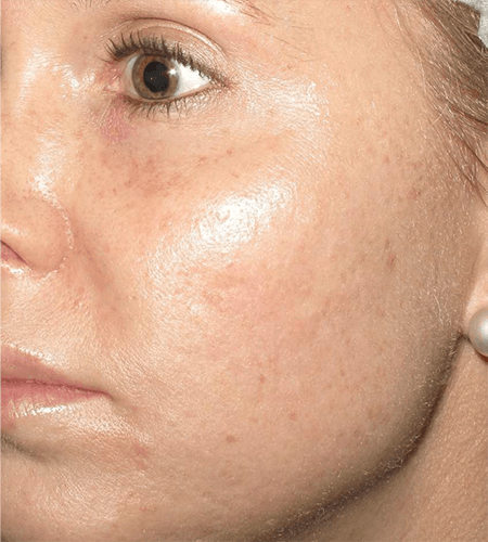 Improved Skin Tone and Skin Texture after Microneedling