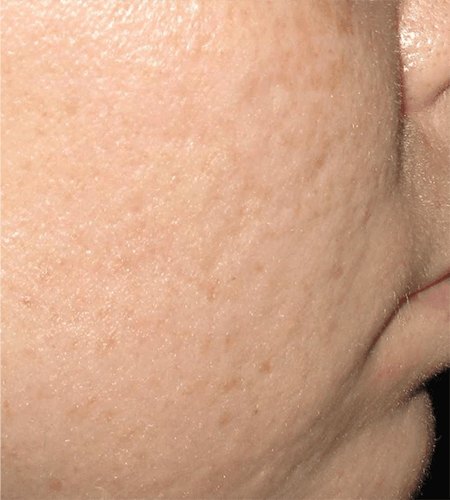 Acne Scar Treatment with Microneedling