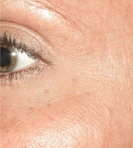 Fine Lines and Pigmentation Treatment with Microneedling