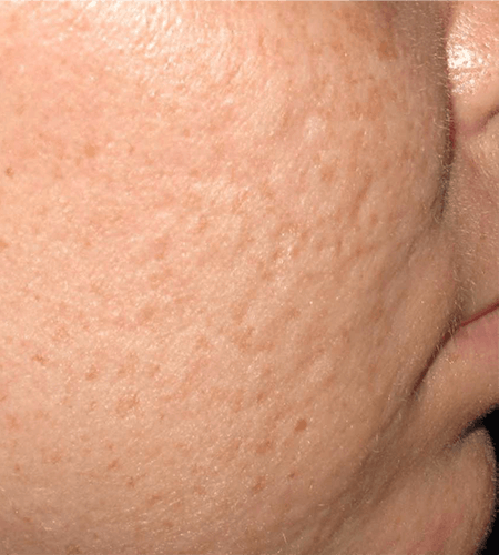Acne Scaring Treatment with Microneedling